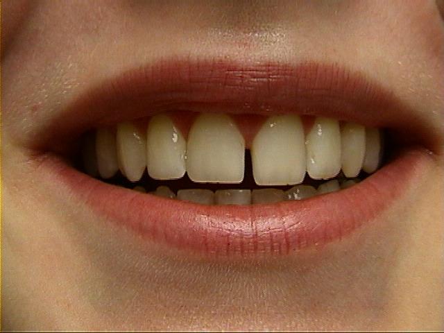 cosmetische-restauratie-tandarts-injeelement-voor-behandeling