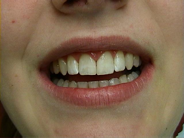 cosmetische-restauratie-tandarts-injeelement-na-behandeling