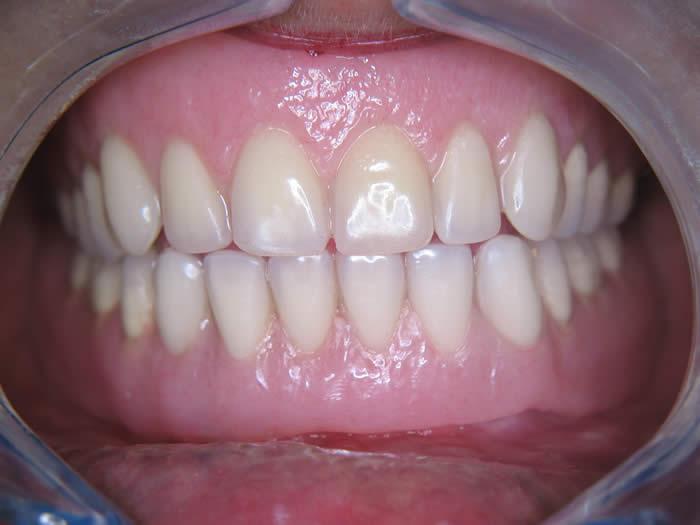 Implantologie-tandarts-injeelement-utrecht