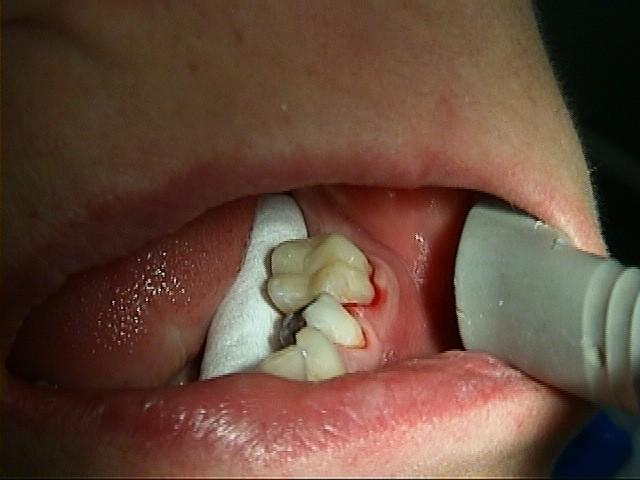 restaureren-gebit-tandartspraktijk-utrecht-na-behandeling
