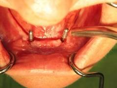 Implantologie-tandartsenpraktijk-injeelement-utrecht