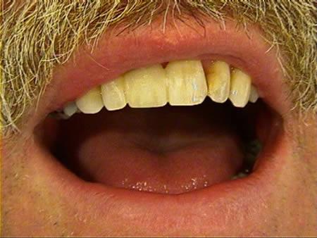 cosmetische-restauratie-tandartsenpraktijk-na-behandeling