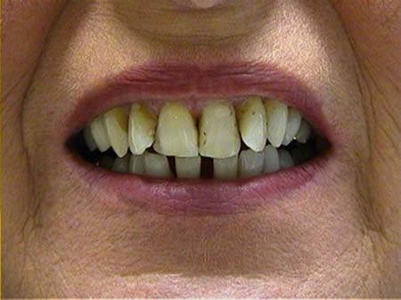 cosmetische-restauratie-tandheelkunde-voor-behandeling