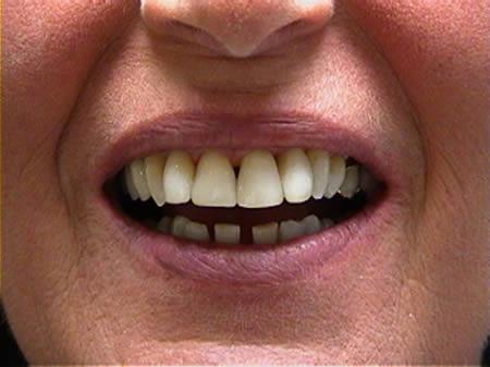 cosmetische-restauratie-tandheelkunde-na-behandeling