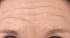 azzalure-voorhoofdrimpels-injectie-botox-voor-foto