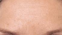 azzalure-voorhoofdrimpels-injectie-botox-na-foto