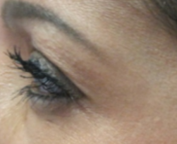 azzalure-kraaienpootjes-injectie-botox-na-foto